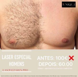 Depilação Laser Homens