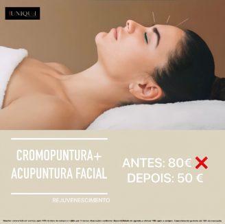 Cromopuntura + Acupuntura facial